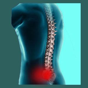 Acute sacroiliac pain