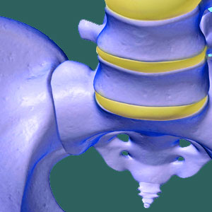 Hypomobile Sacroiliac Joint