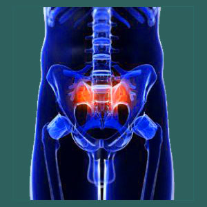 Knowledge therapy for sacroiliac