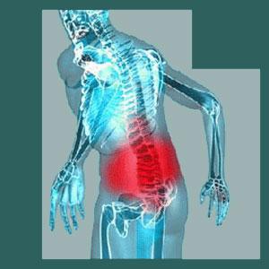 Misdiagnosed Sacroiliac Pain