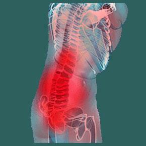 Sacroiliac joint ischemia